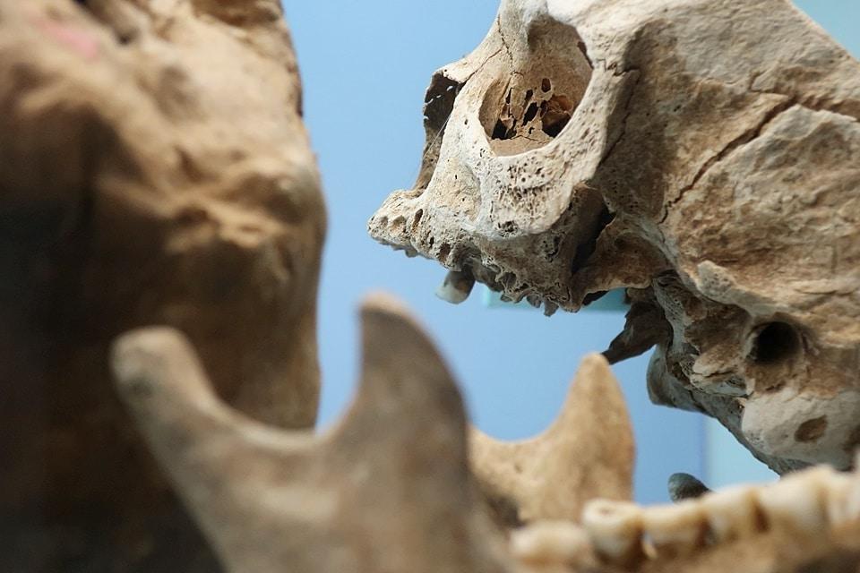 Schorzenia ludności prahistorycznej